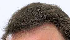 hair instantly start enjoying a thick full head of hair right away if